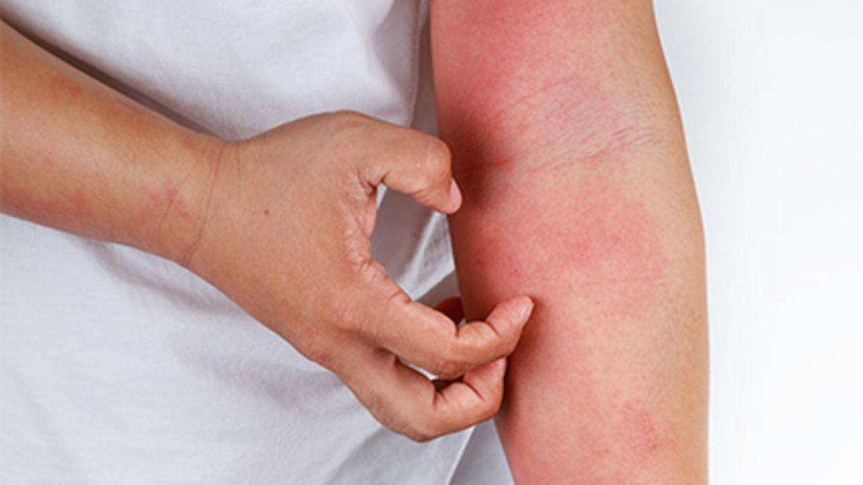 Un estudio halló que los niños con eczema están en riesgo de depresión