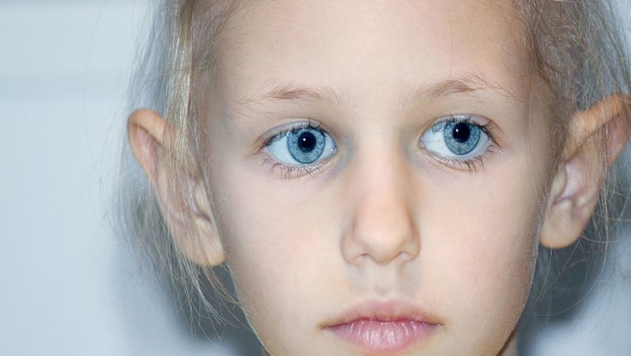 Poverty May Up Hematopoietic Cell Transplant-Related Mortality in Children