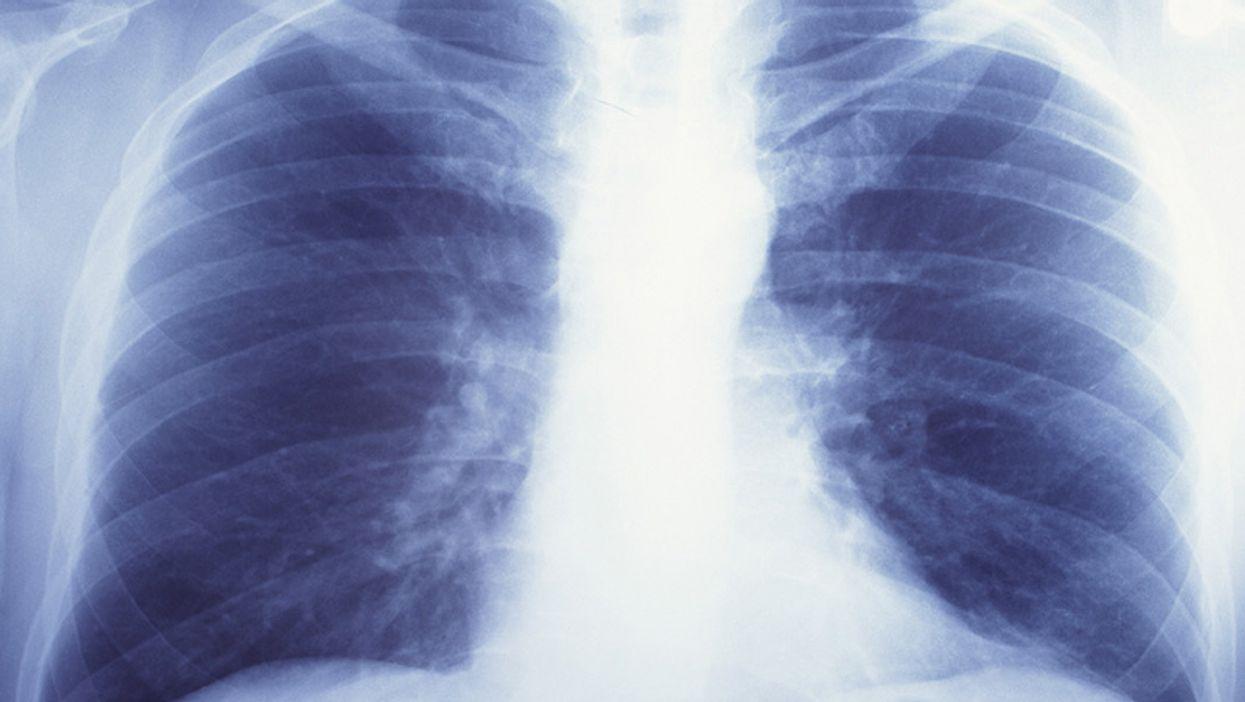 En los pulmones hay hongos, y es normal