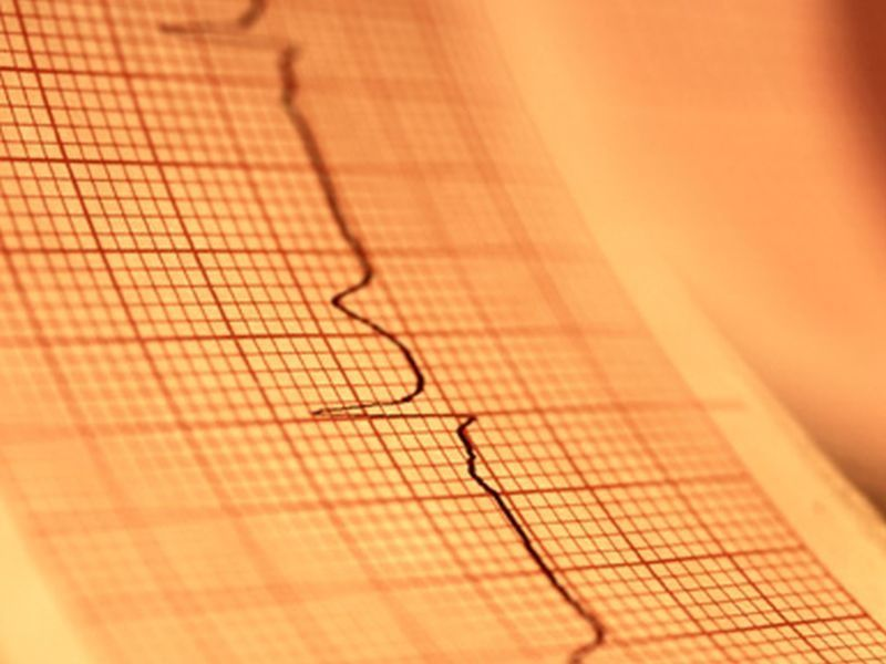 Cancer Survivors May Face Higher Odds for Heart Trouble