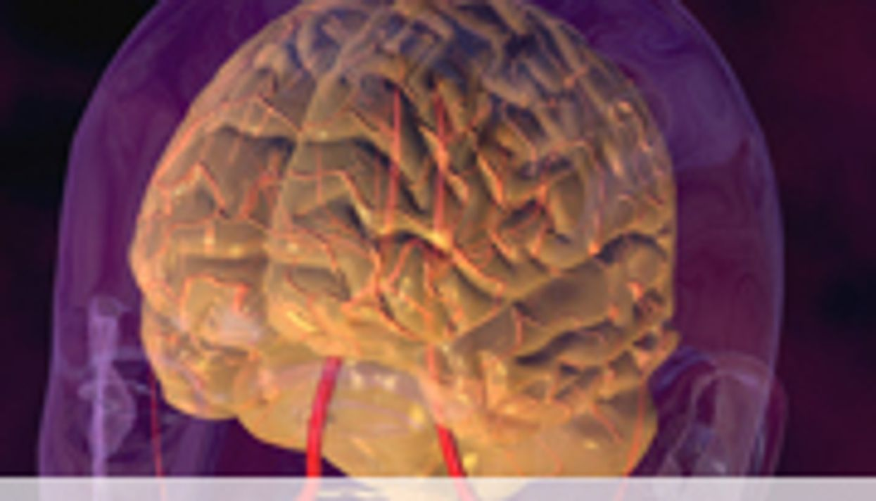 Adult Children of Stroke Sufferers May Show Signs of Brain Aging, Too