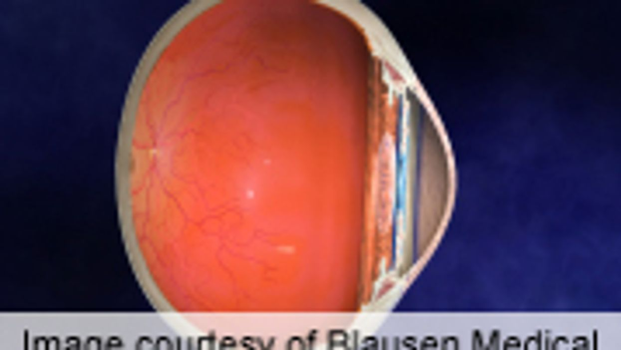 AAO: Researchers Characterize Uveitis With Multiple Sclerosis