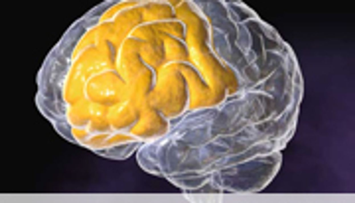 Trial Set to See if Drug Can Prevent Alzheimer's