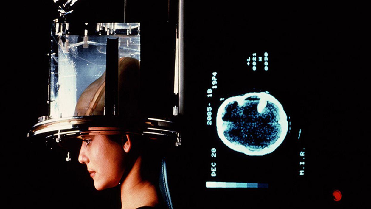 Los pacientes de neurología podrían prescindir de las pruebas por su creciente costo