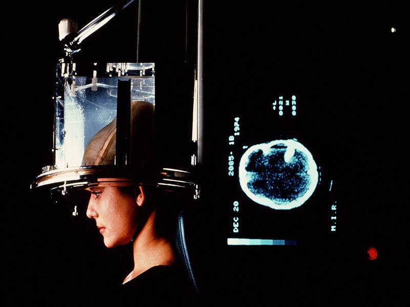 As Testing Costs Rise, Neurology Patients May Skip Screening thumbnail