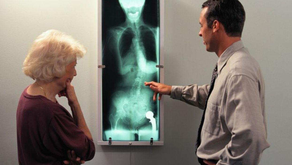 spinal xray