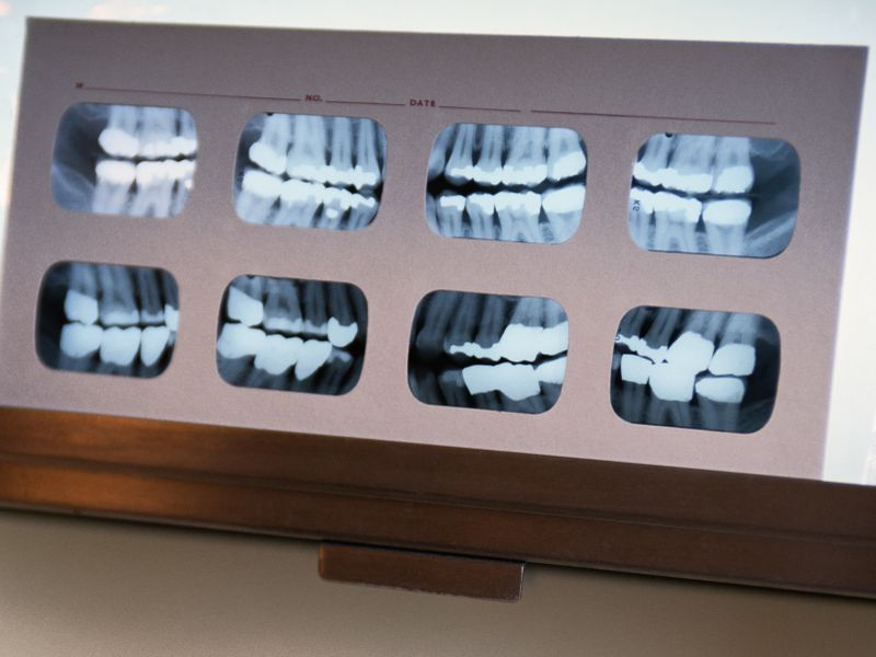Tense Times Mean More Tooth-Grinding, Dentists Warn thumbnail