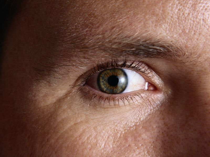 Weight-Loss Surgery Might Also Help Prevent Cataracts