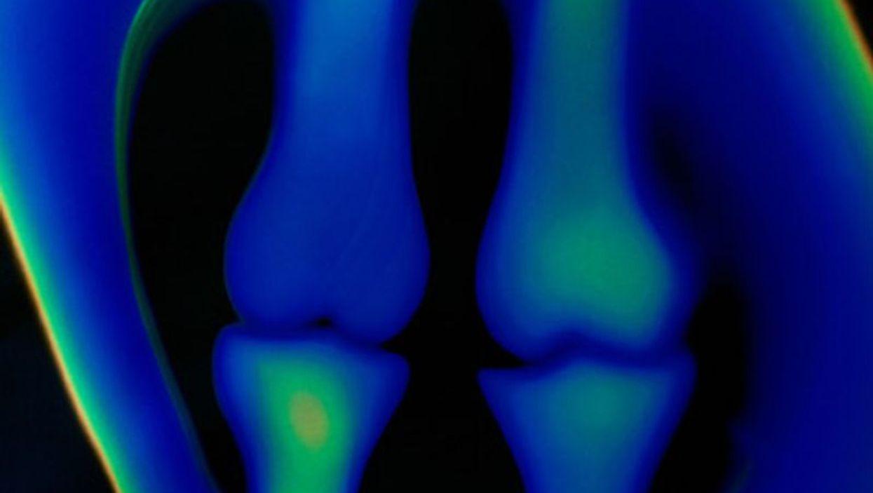 bones x-ray
