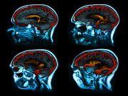 'Fantasmas y ángeles guardianes': una nueva comprensión sobre las alucinaciones del Parkinson