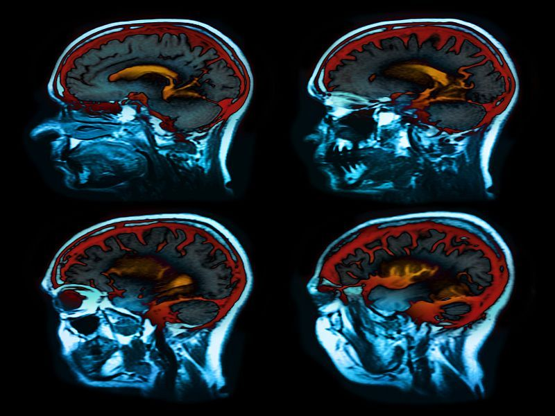 Scans Reveal How COVID-19 Can Harm the Brain