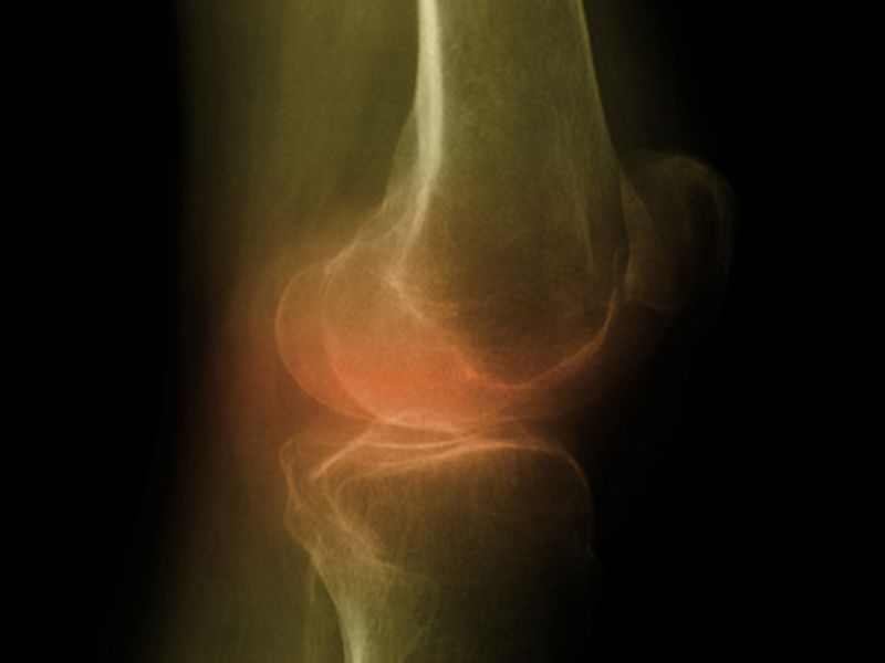 News Picture: Knee Replacement a Good Option, Even for Severely Obese: Study