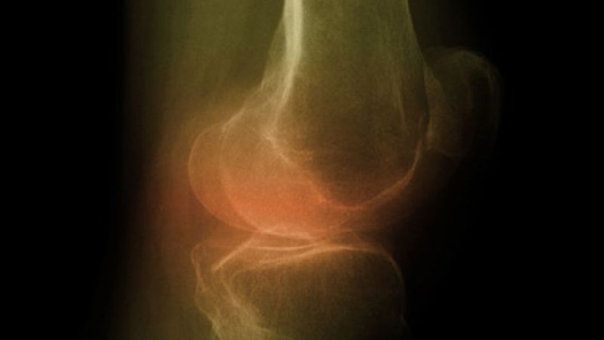 Knee Replacement a Good Option, Even for Severely Obese: Study