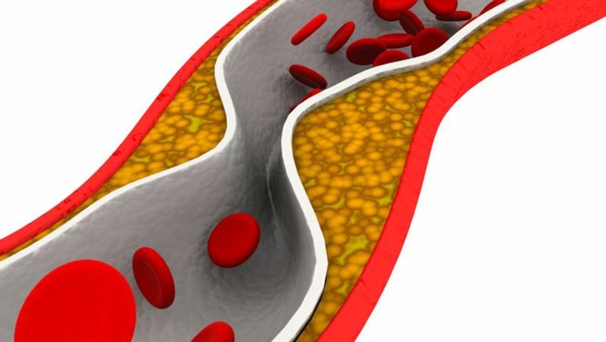 plaque in artery