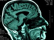 Daydreaming? Study Shows Where Your Brain Goes When You Do