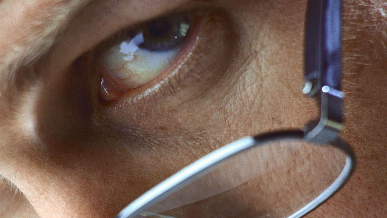 man wearing a glasses