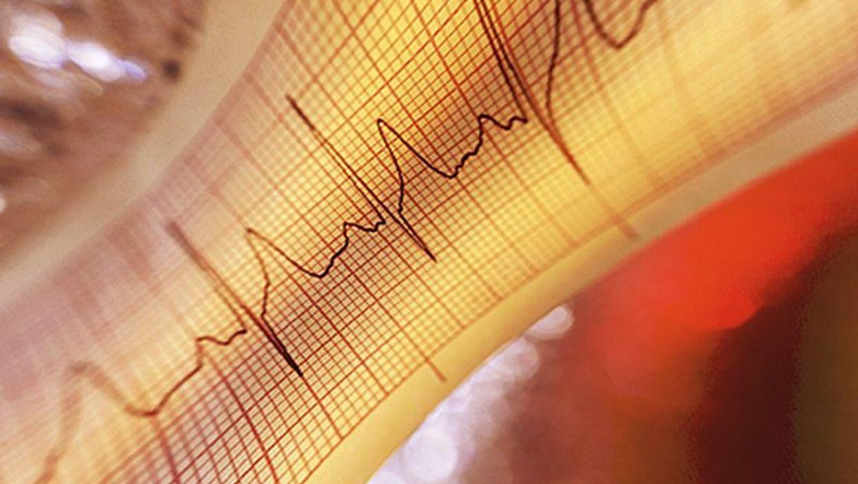 heartbeat ekg