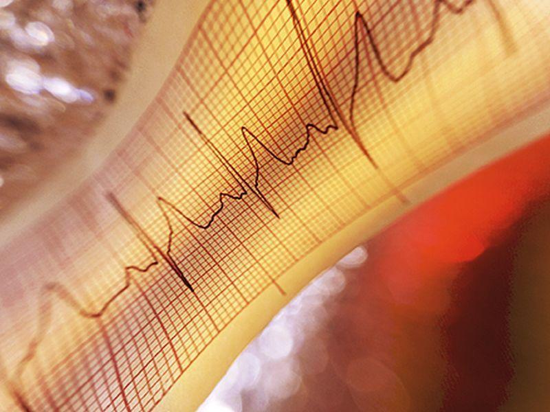 'Alexa, Is My Heartbeat Healthy?'