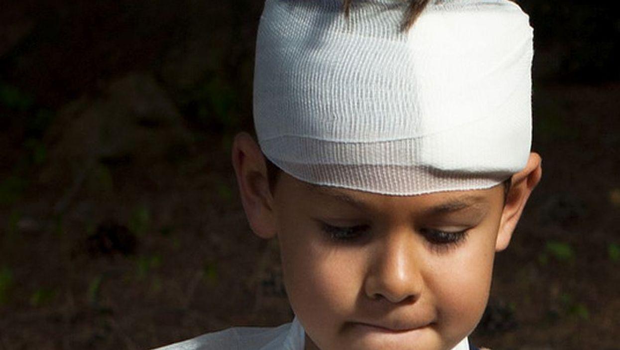 child\'s head injury