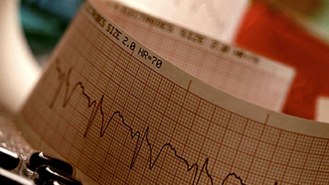 heartbeat scan