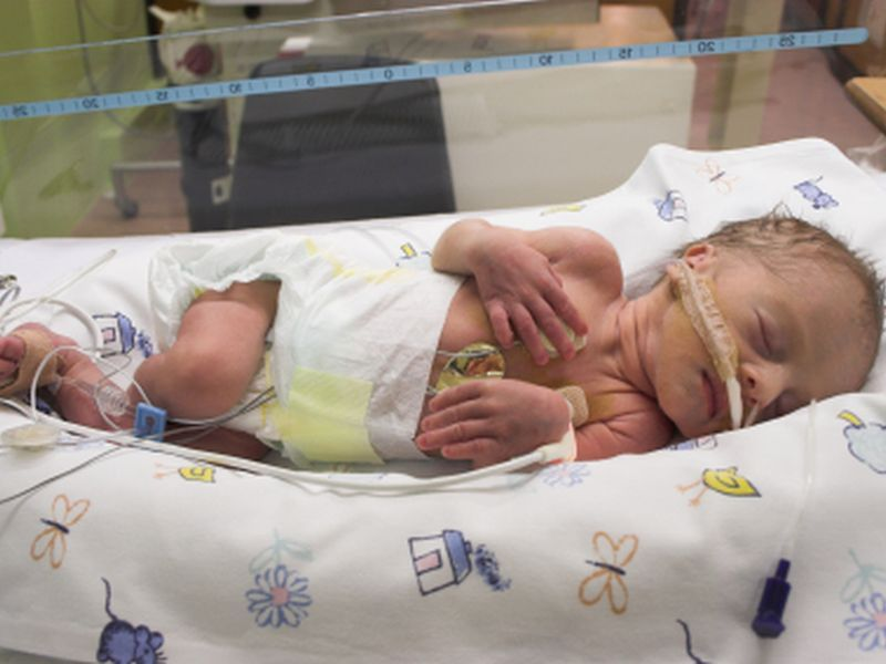 Preemie Babies End Up Hospitalized More as Kids
