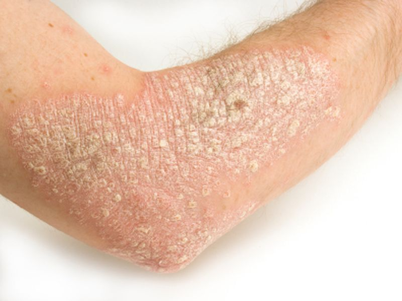 Heart Risk Factors May Be Especially Unhealthy in People With Psoriasis thumbnail