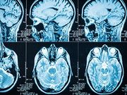 Dexamethasone May Hinder Immunotherapy for Glioblastoma