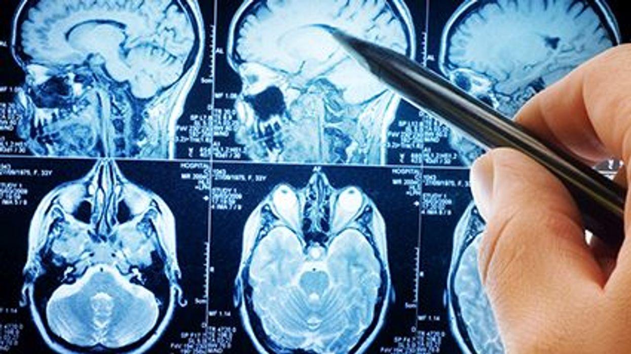 Neurologists Much Tougher to Find in Rural America