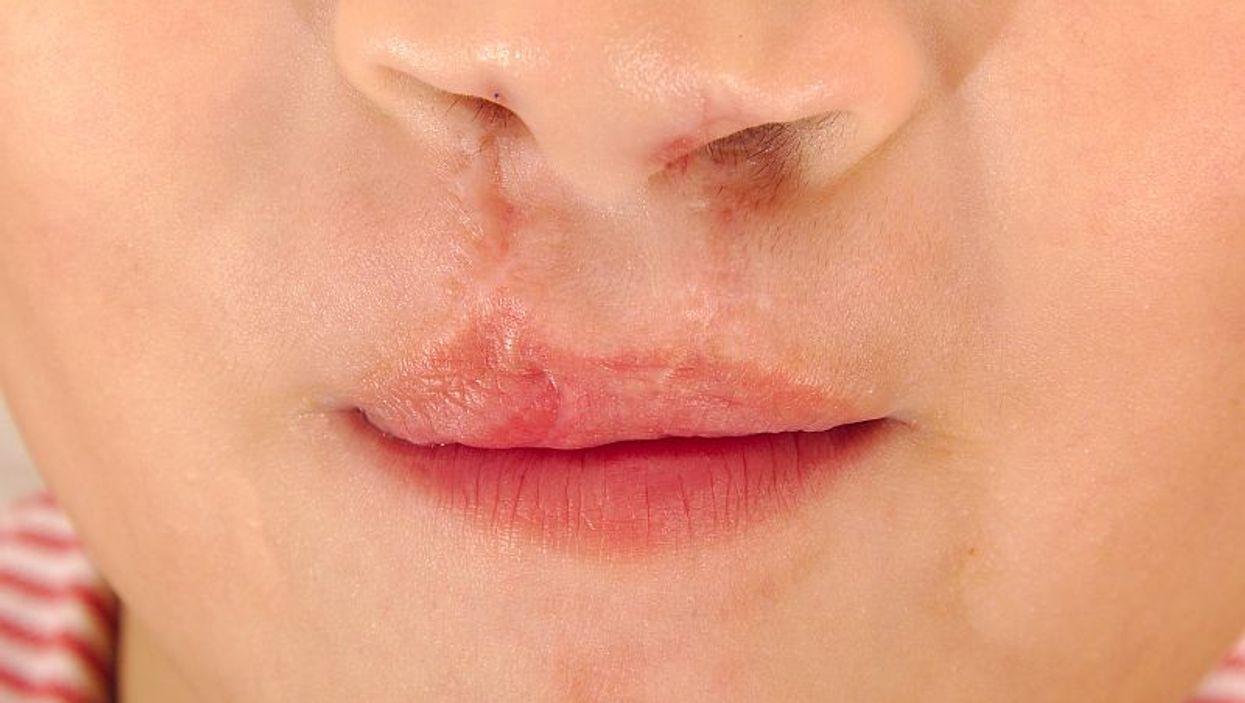 cleft lip