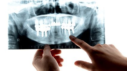 News Picture: How Gum Disease Could Raise Your Odds for Severe COVID-19