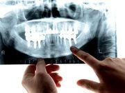 Cómo la enfermedad de las encías aumenta las probabilidades de una COVID-19 grave