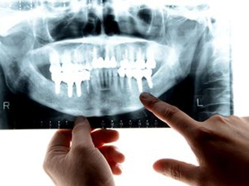 How Gum Disease Could Raise Your Odds for Severe COVID-19
