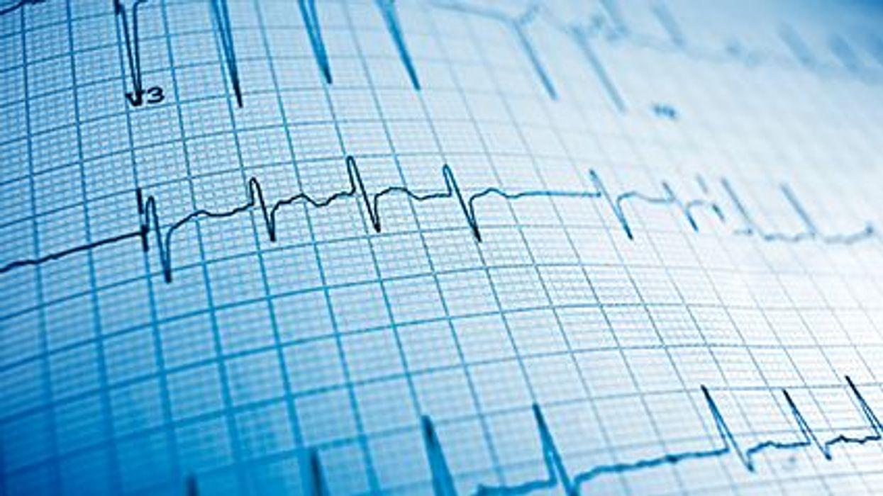 Women More Prone to Nighttime Cardiac Arrest Than Men