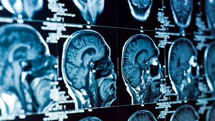 Fluid-Filled Spaces in the Brain Linked to Worsening Memory thumbnail