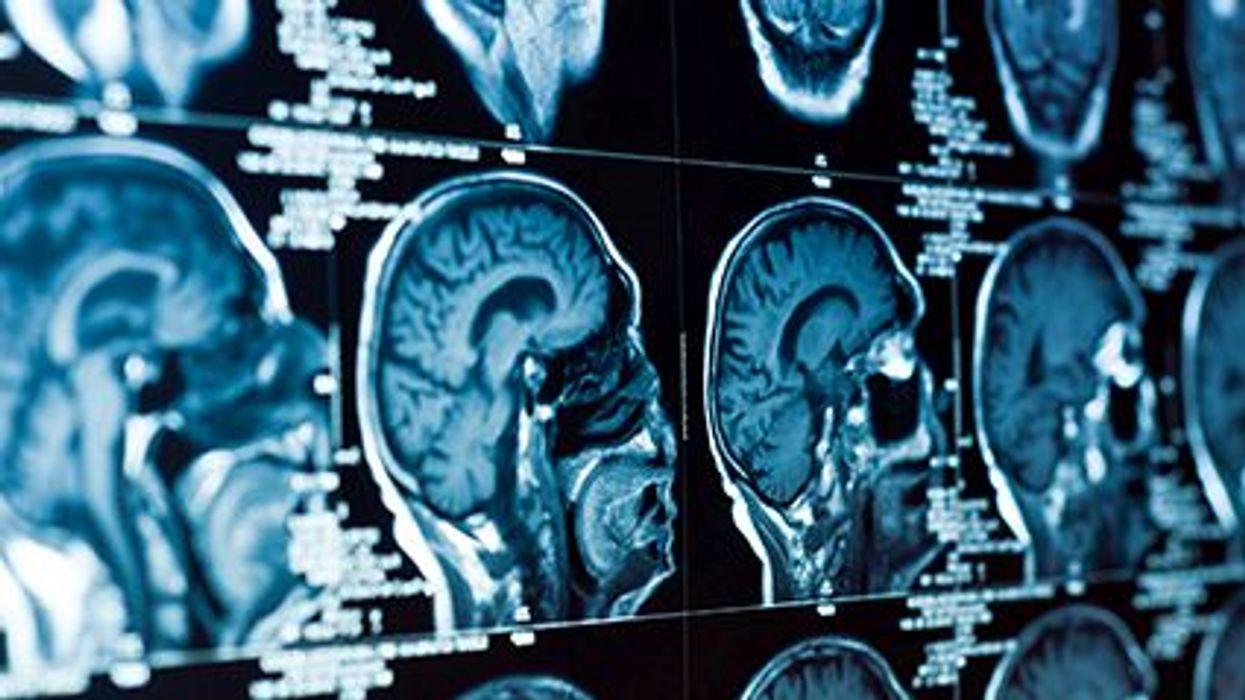 Unos espacios llenos de fluidos en el cerebro podrían vincularse con un empeoramiento de la memoria