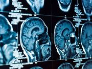 FUS-Subthalamotomie bei asymmetrischer Parkinson-Krankheit untersucht