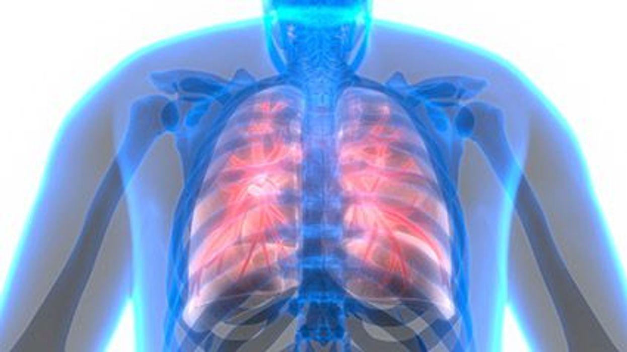 respiratory disease