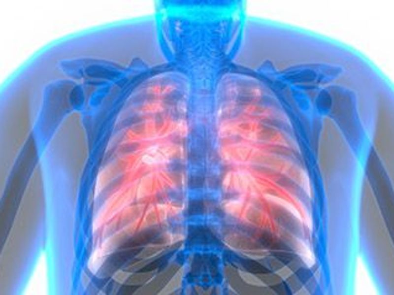 Women More Likely to Survive Lung Cancer After Surgery: Study