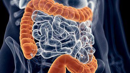 Os resultados da colonoscopia de parentes podem afetar o seu risco de câncer de cólon