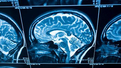 News Picture: Childhood Lead Exposure Tied to Brain Changes in Middle Age