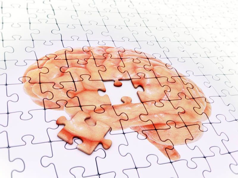 Aphasia Affects Brain Similar to Alzheimer's, But Without Memory Loss
