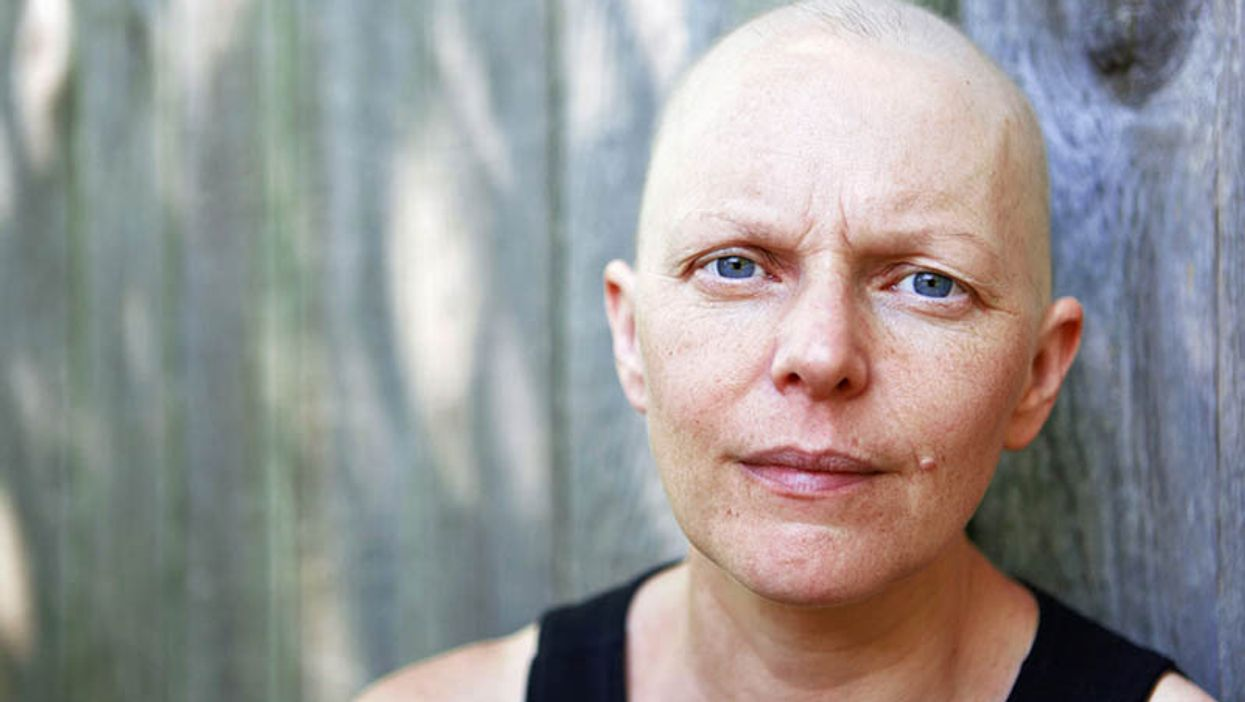 Risk for Developing, Dying From Second Cancer Higher for Survivors
