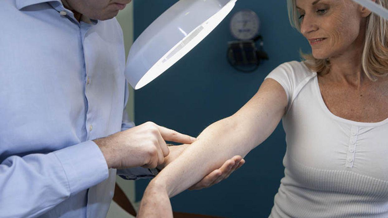 doctor testing woman\'s skin