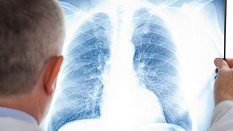 Pandemic Closures, Fears Keep Patients From Lung Cancer Screening