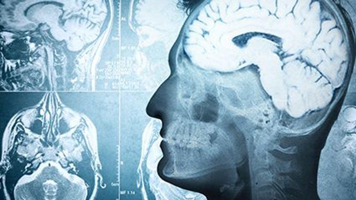 healthy diet for brain