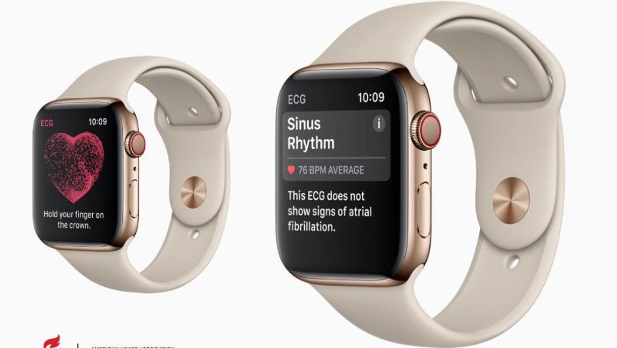 ECG on Apple Watch