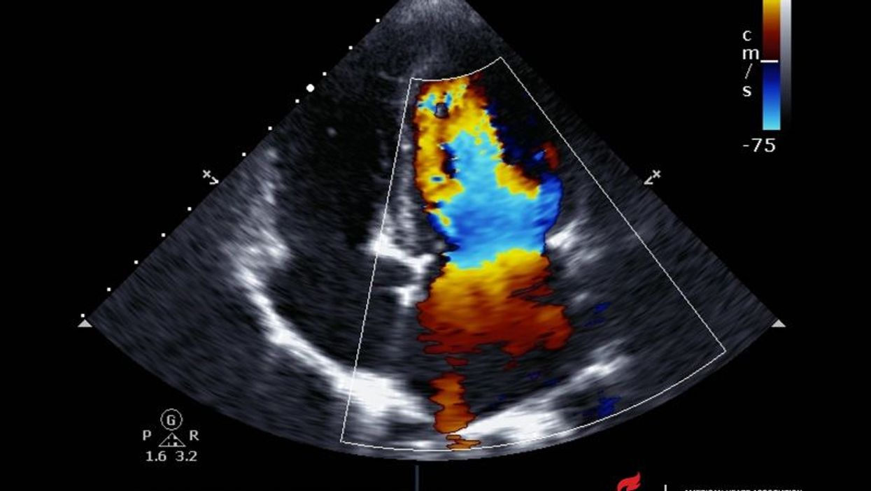 new technology for echocardiograms