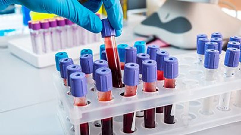 High Blood Levels of Cadmium May Be Tied to Worse COVID-19