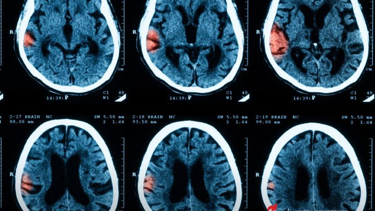 Ozone polution may be linked to a type of bleeding stroke