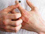 Les formes sévères et actives d'eczéma atopique sont liées à une augmentation du risque de mortalité